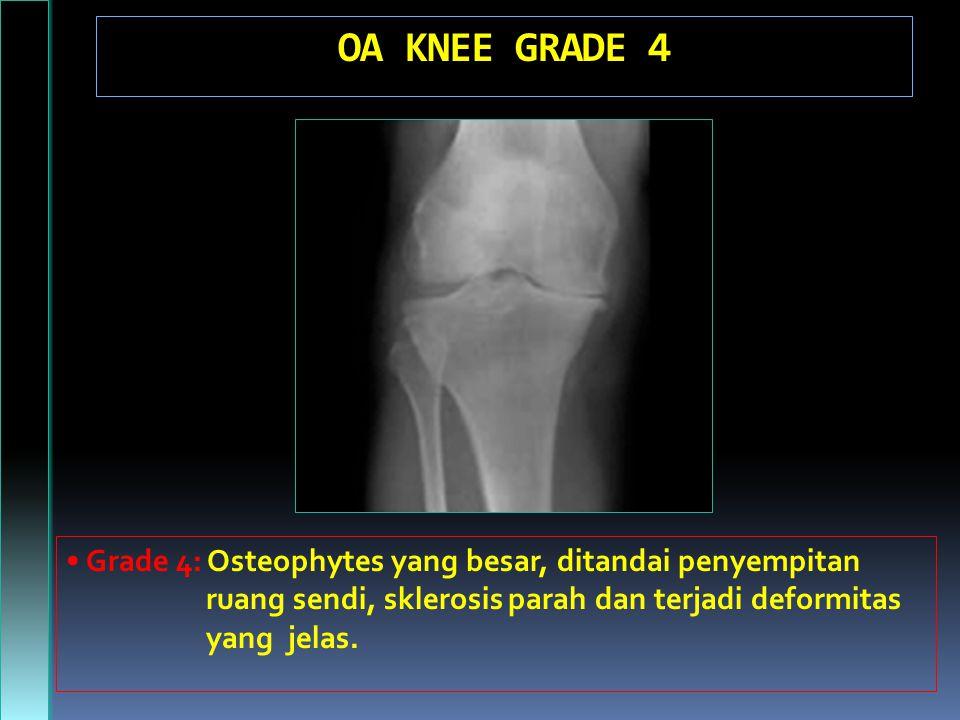 OA KNEE GRADE 4 Grade 4: Osteophytes yang besar, ditandai penyempitan ruang sendi, sklerosis parah dan terjadi deformitas yang jelas.