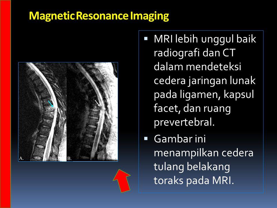 Magnetic Resonance Imaging  MRI lebih unggul baik radiografi dan CT dalam mendeteksi cedera jaringan lunak pada ligamen, kapsul facet, dan ruang prevertebral.