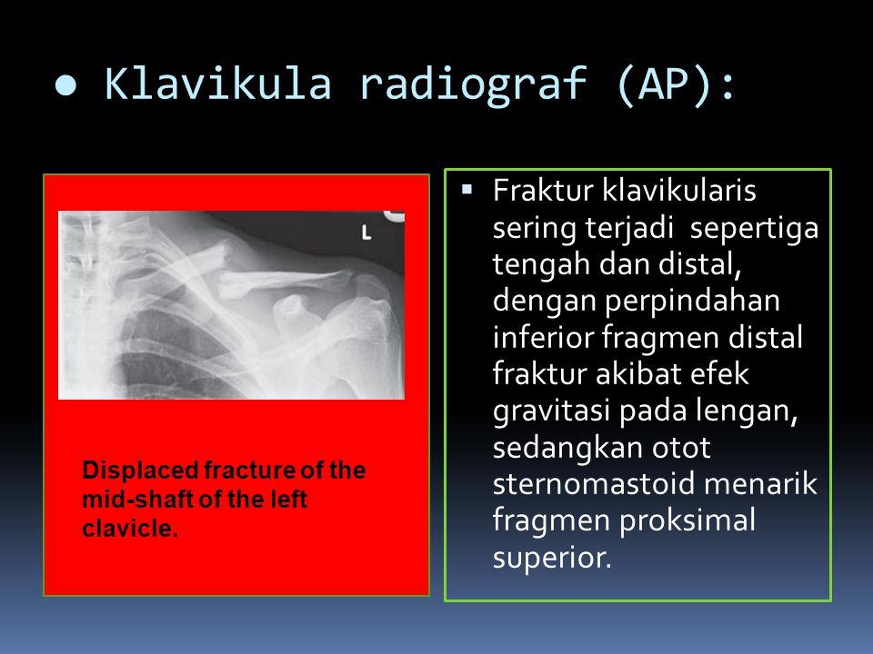 ● Klavikula radiograf (AP):  Fraktur klavikularis sering terjadi sepertiga tengah dan distal, dengan perpindahan inferior fragmen distal fraktur akibat efek gravitasi pada lengan, sedangkan otot sternomastoid menarik fragmen proksimal superior.