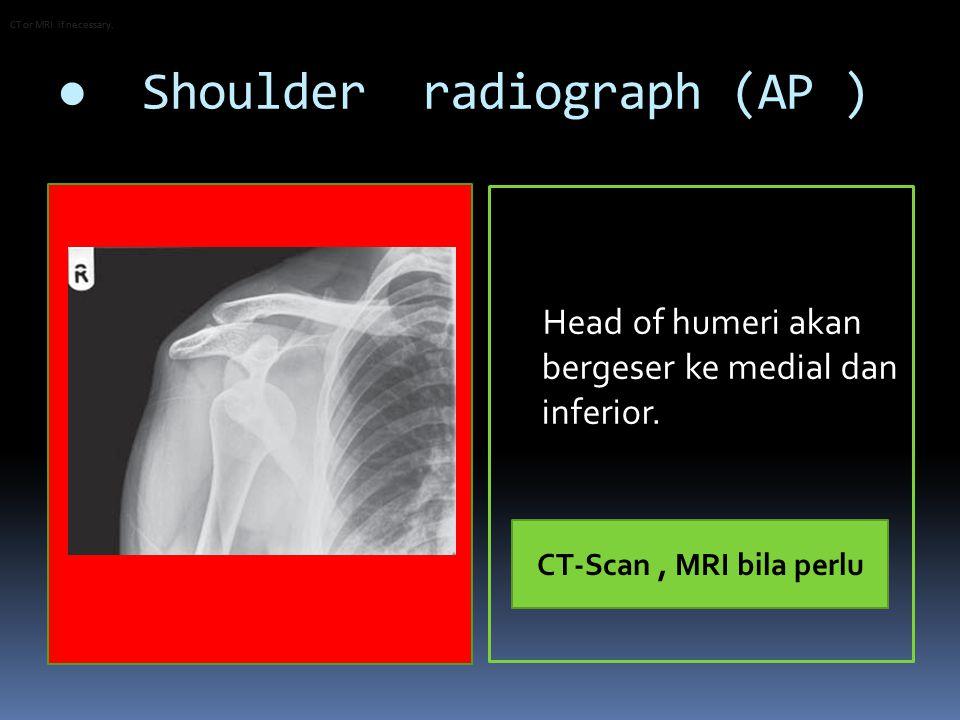 ● Shoulder radiograph (AP ) Head of humeri akan bergeser ke medial dan inferior.