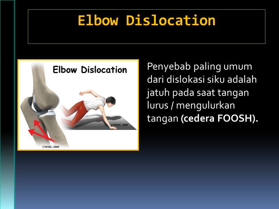 Elbow Dislocation Penyebab paling umum dari dislokasi siku adalah jatuh pada saat tangan lurus / mengulurkan tangan (cedera FOOSH).