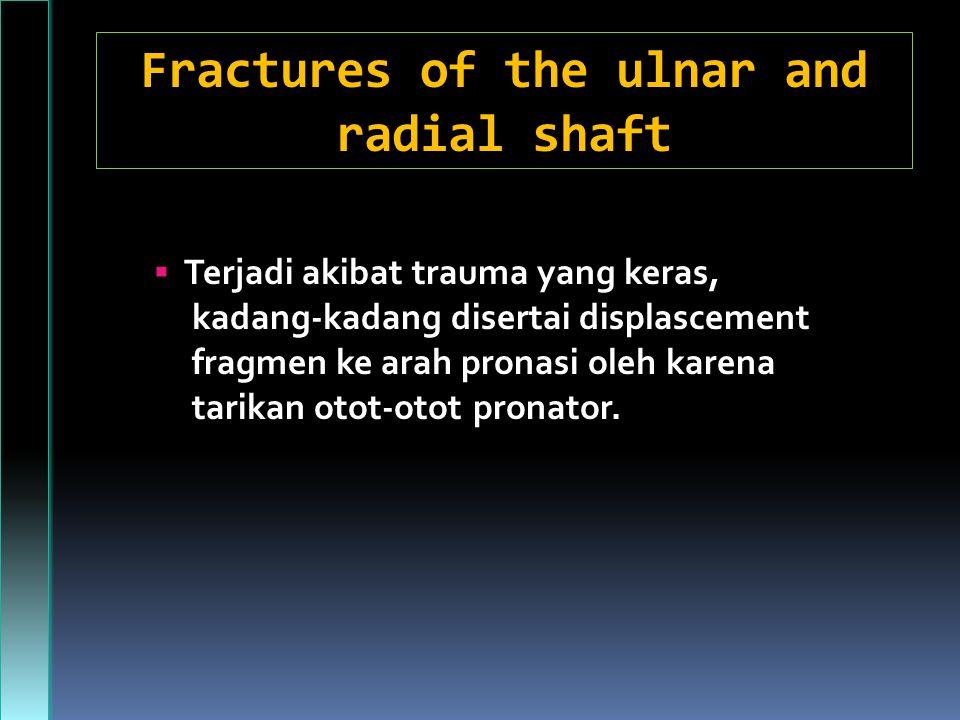 Fractures of the ulnar and radial shaft  Terjadi akibat trauma yang keras, kadang-kadang disertai displascement fragmen ke arah pronasi oleh karena tarikan otot-otot pronator.
