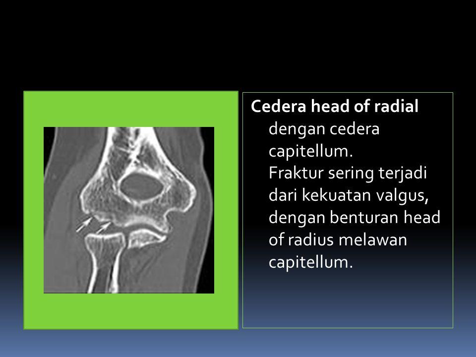 Cedera head of radial dengan cedera capitellum.