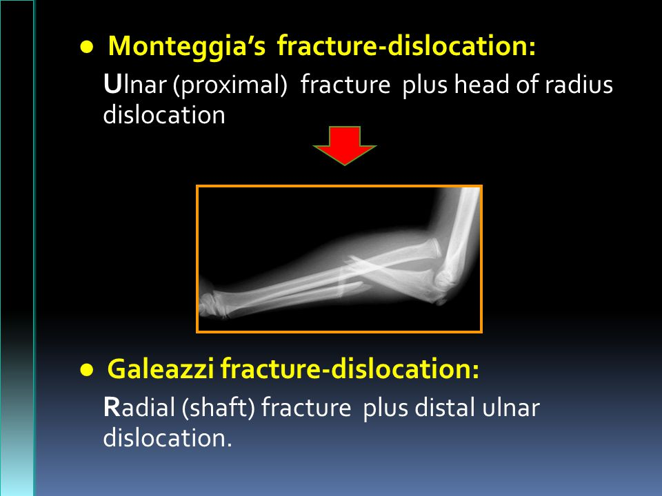 ● Monteggia's fracture-dislocation: U lnar (proximal) fracture plus head of radius dislocation ● Galeazzi fracture-dislocation: R adial (shaft) fracture plus distal ulnar dislocation.