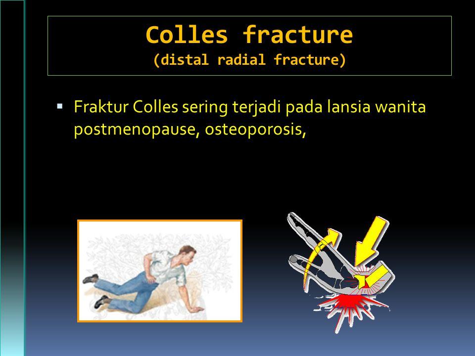 Colles fracture (distal radial fracture)  Fraktur Colles sering terjadi pada lansia wanita postmenopause, osteoporosis,