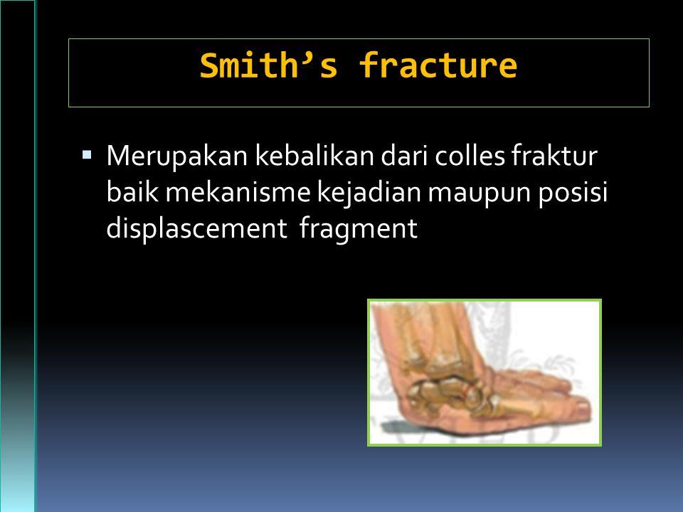 Smith's fracture  Merupakan kebalikan dari colles fraktur baik mekanisme kejadian maupun posisi displascement fragment