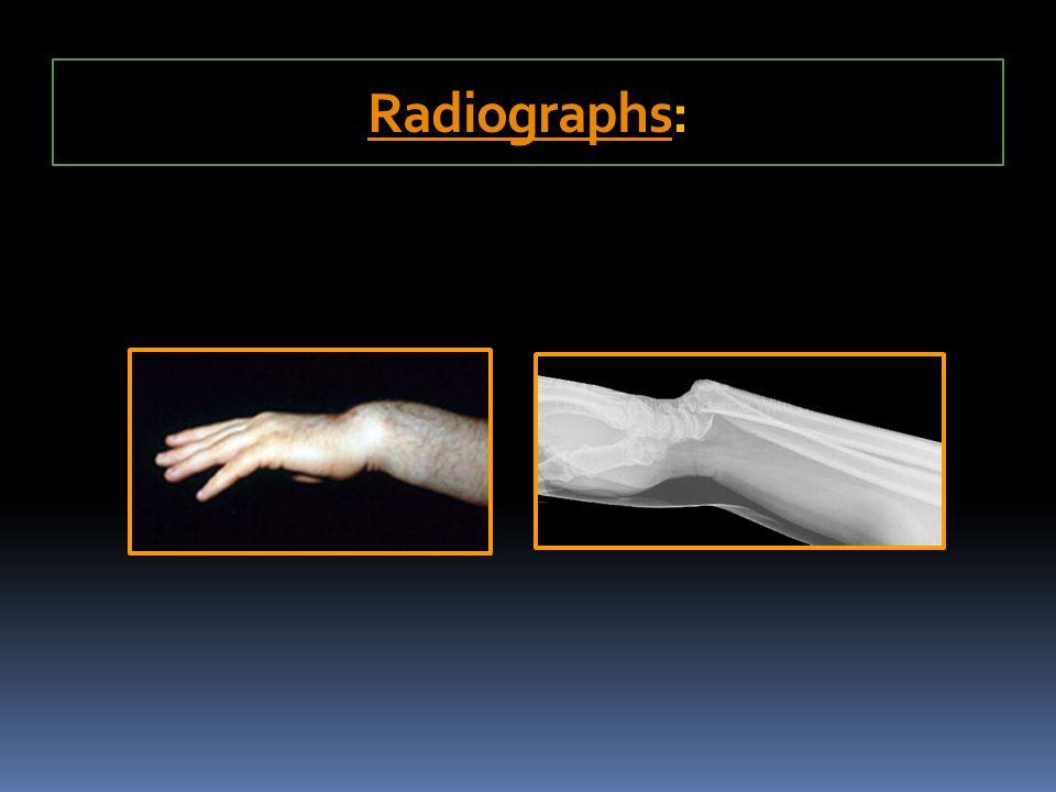 RadiographsRadiographs: