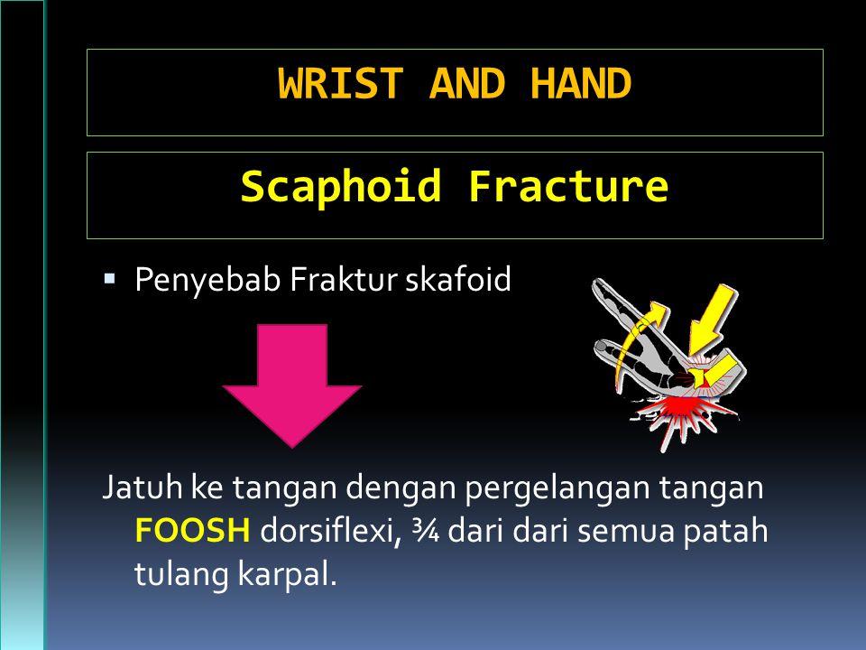 WRIST AND HAND  Penyebab Fraktur skafoid Jatuh ke tangan dengan pergelangan tangan FOOSH dorsiflexi, ¾ dari dari semua patah tulang karpal.