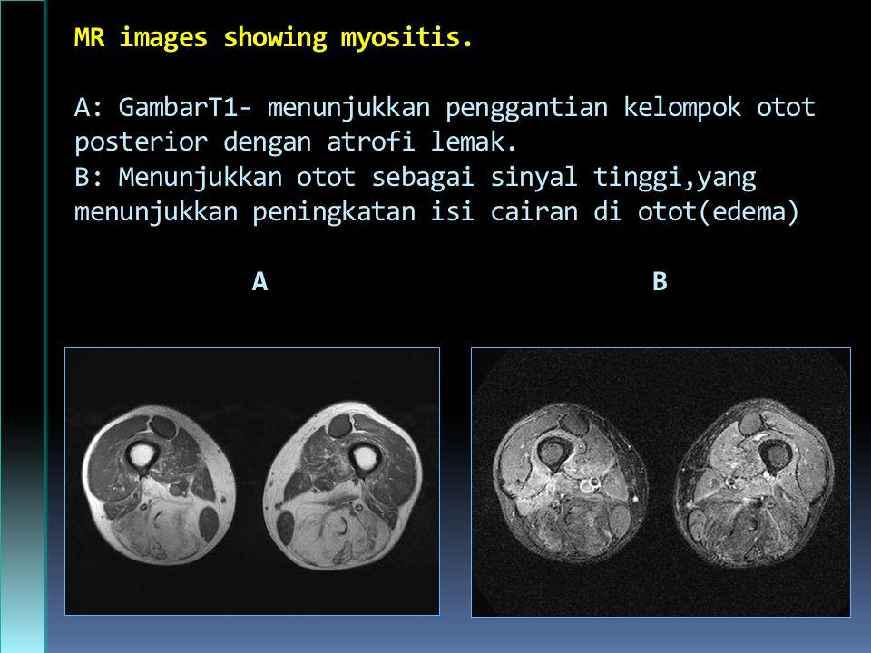MR images showing myositis.