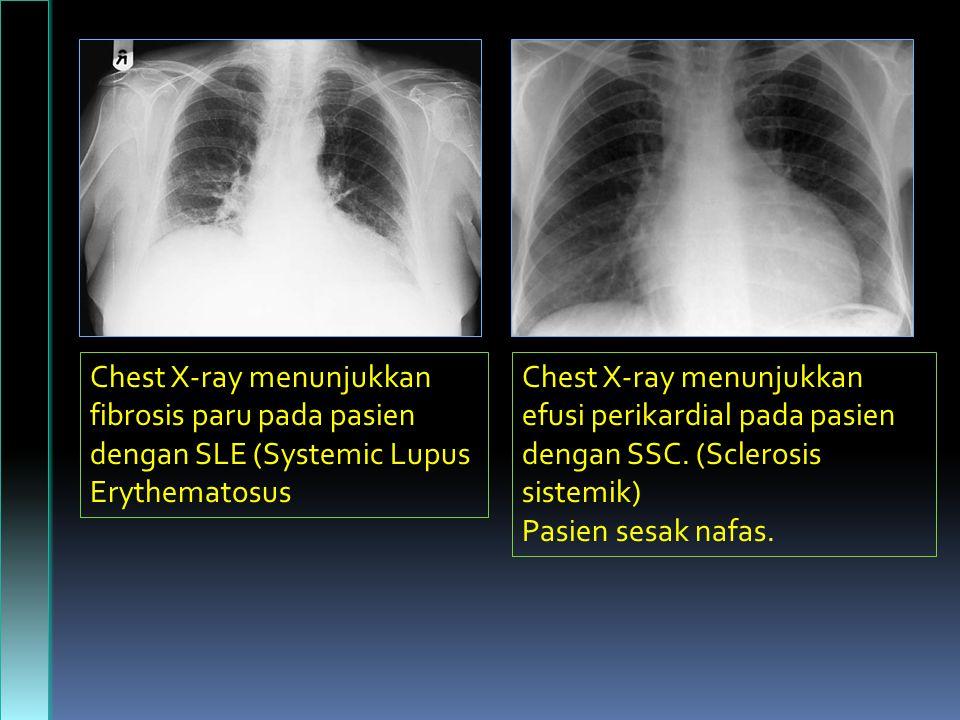 Chest X-ray menunjukkan fibrosis paru pada pasien dengan SLE  (Systemic Lupus Erythematosus Chest X-ray menunjukkan efusi perikardial pada pasien dengan SSC.