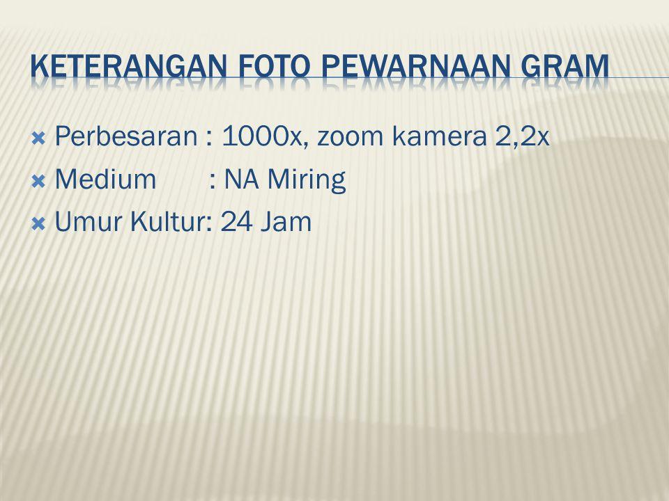  Perbesaran : 1000x, zoom kamera 2,2x  Medium : NA Miring  Umur Kultur: 24 Jam