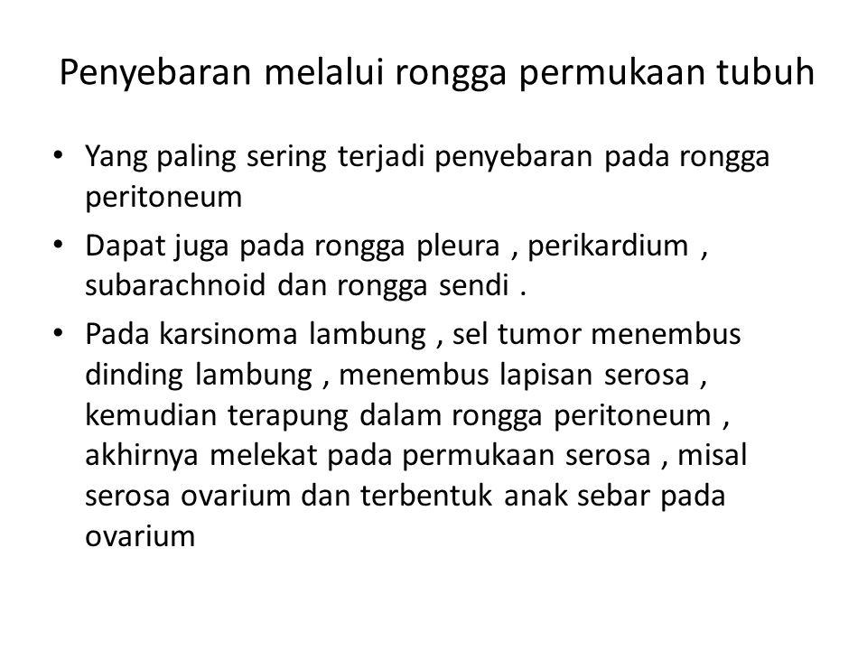 Penyebaran melalui rongga permukaan tubuh Yang paling sering terjadi penyebaran pada rongga peritoneum Dapat juga pada rongga pleura, perikardium, sub