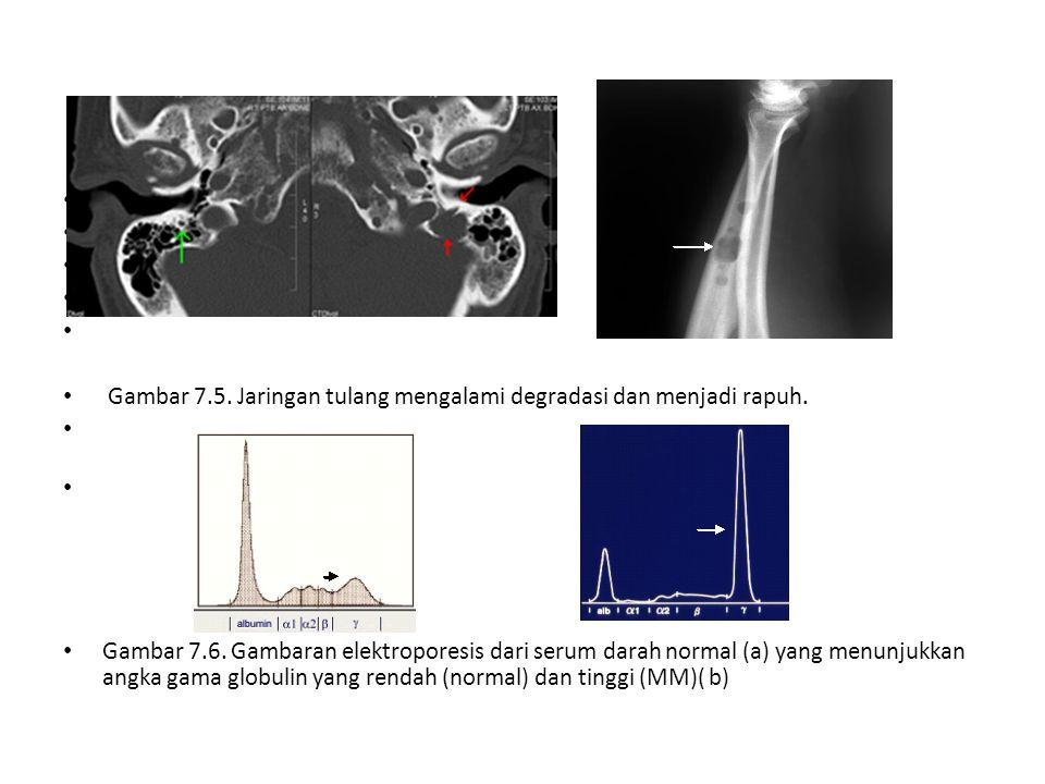 Gambar 7.5. Jaringan tulang mengalami degradasi dan menjadi rapuh.