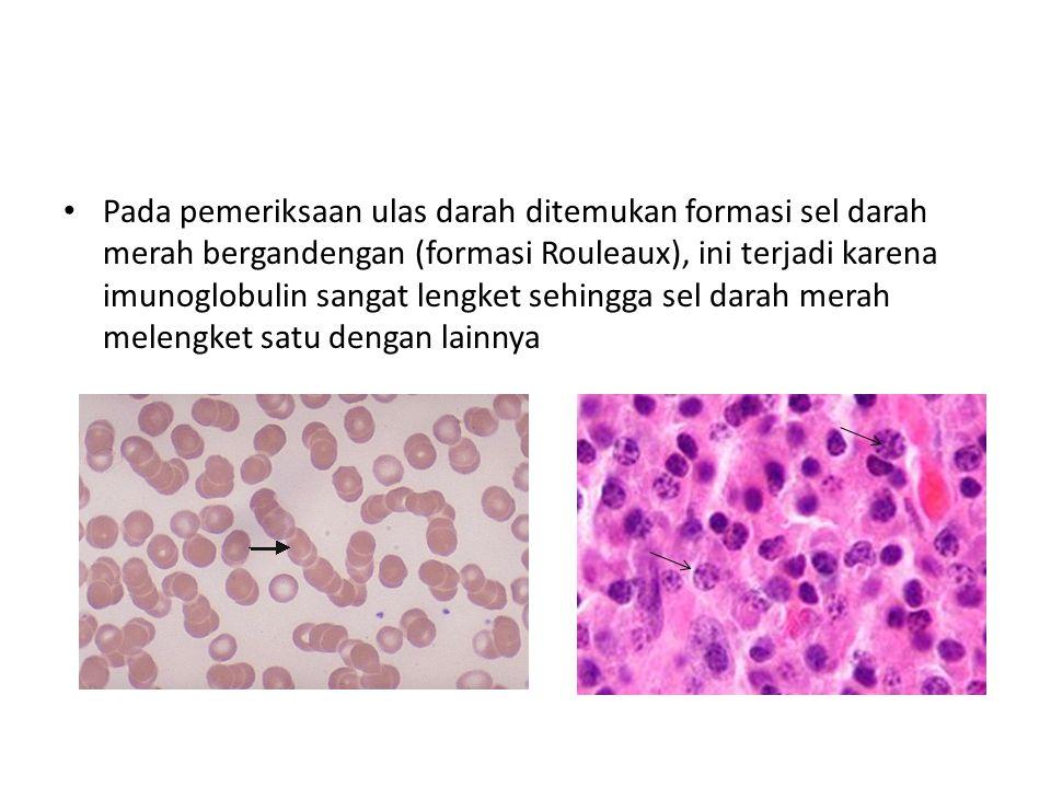Pada pemeriksaan ulas darah ditemukan formasi sel darah merah bergandengan (formasi Rouleaux), ini terjadi karena imunoglobulin sangat lengket sehingga sel darah merah melengket satu dengan lainnya