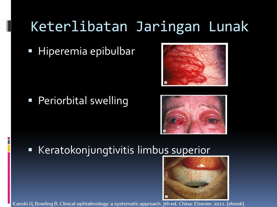 Keterlibatan Jaringan Lunak  Hiperemia epibulbar  Periorbital swelling  Keratokonjungtivitis limbus superior Kanski JJ, Bowling B. Clinical ophtalm