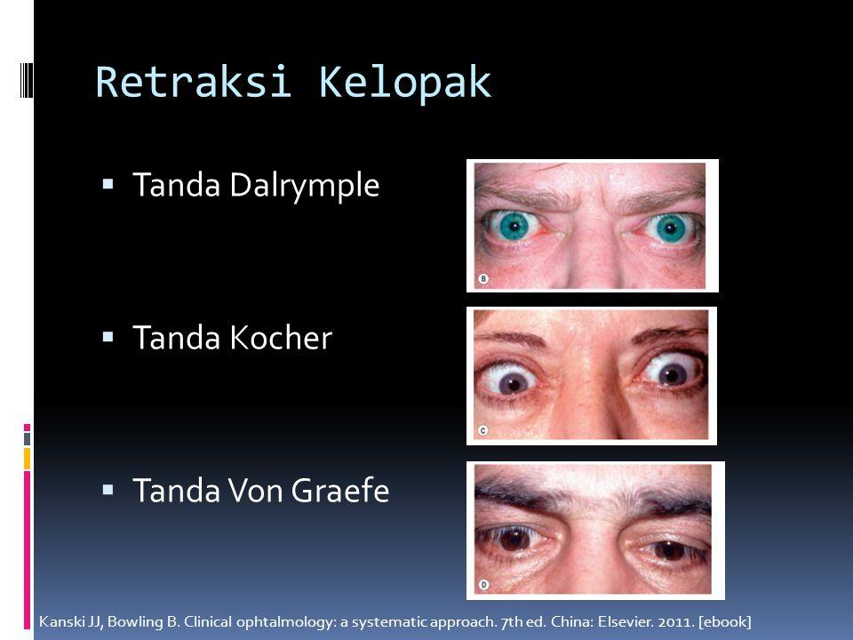 Retraksi Kelopak  Tanda Dalrymple  Tanda Kocher  Tanda Von Graefe Kanski JJ, Bowling B. Clinical ophtalmology: a systematic approach. 7th ed. China