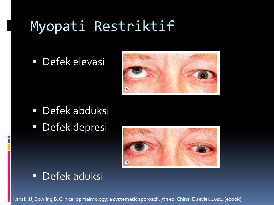 Myopati Restriktif  Defek elevasi  Defek abduksi  Defek depresi  Defek aduksi Kanski JJ, Bowling B. Clinical ophtalmology: a systematic approach.