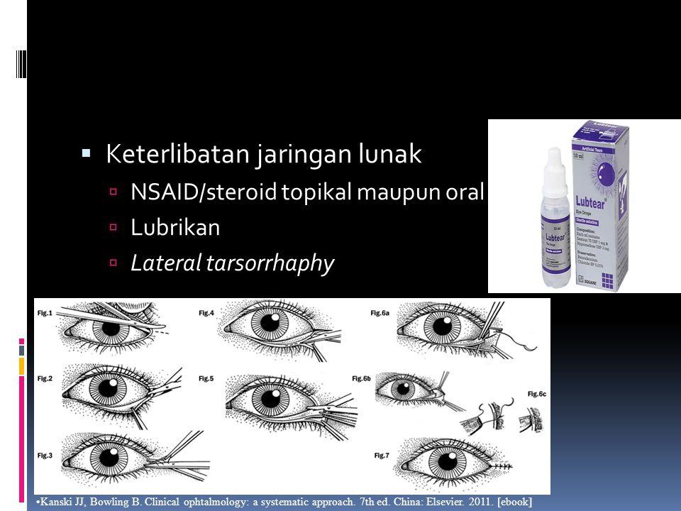  Keterlibatan jaringan lunak  NSAID/steroid topikal maupun oral  Lubrikan  Lateral tarsorrhaphy Kanski JJ, Bowling B. Clinical ophtalmology: a sys