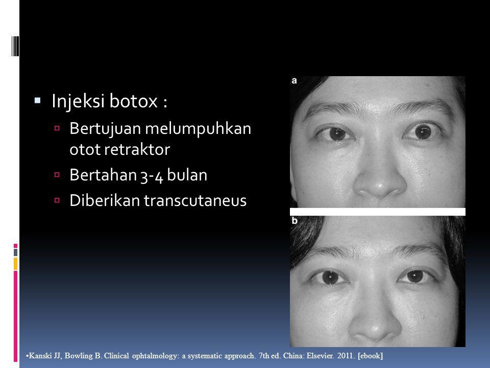  Injeksi botox :  Bertujuan melumpuhkan otot retraktor  Bertahan 3-4 bulan  Diberikan transcutaneus Kanski JJ, Bowling B. Clinical ophtalmology: a