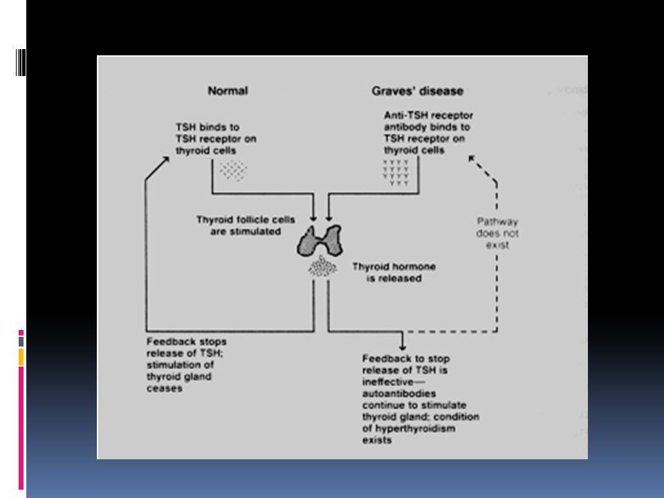 Manifestasi Klinis  Penurunan berat badan  Tremor halus  Eksoftalmus  Takikardia  Amenorrhea/oligomenorrhea  Meningkatkan waktu transit usus  Ophtalmopati Jameson JL, Weetman AP.