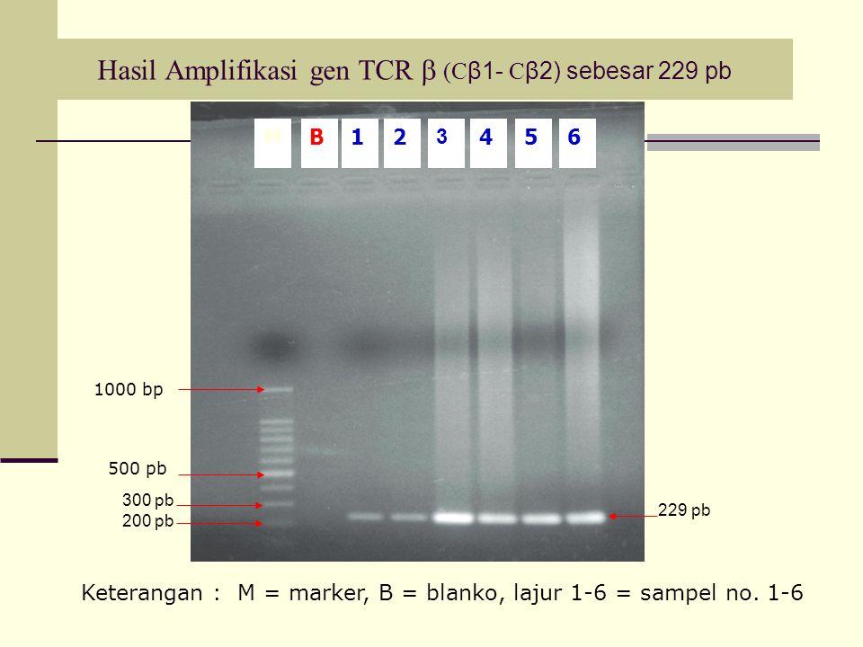 Hasil Amplifikasi gen TCR  (C β1- C β2) sebesar 229 pb 300 pb 200 pb 229 pb 5M12 3 46B 500 pb 1000 bp Keterangan : M = marker, B = blanko, lajur 1-6