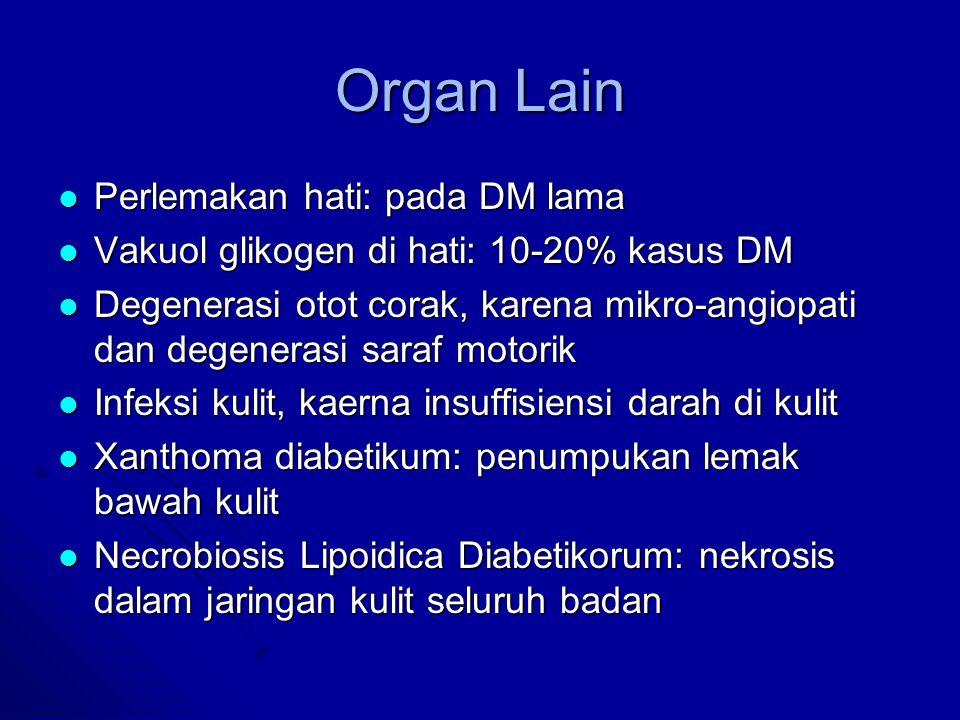Organ Lain Perlemakan hati: pada DM lama Perlemakan hati: pada DM lama Vakuol glikogen di hati: 10-20% kasus DM Vakuol glikogen di hati: 10-20% kasus