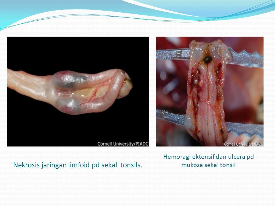 Nekrosis jaringan limfoid pd sekal tonsils. Hemoragi ektensif dan ulcera pd mukosa sekal tonsil