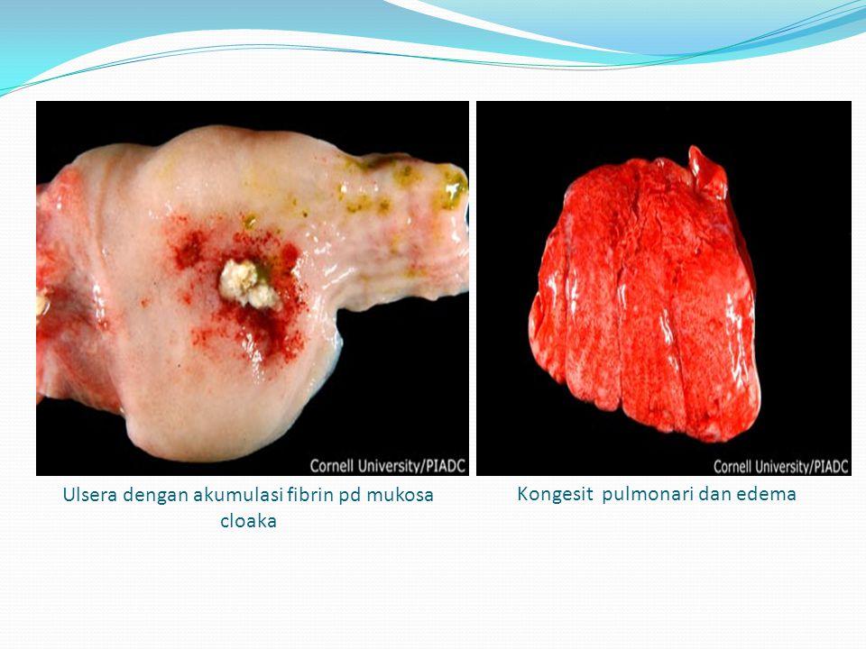 Ulsera dengan akumulasi fibrin pd mukosa cloaka Kongesit pulmonari dan edema
