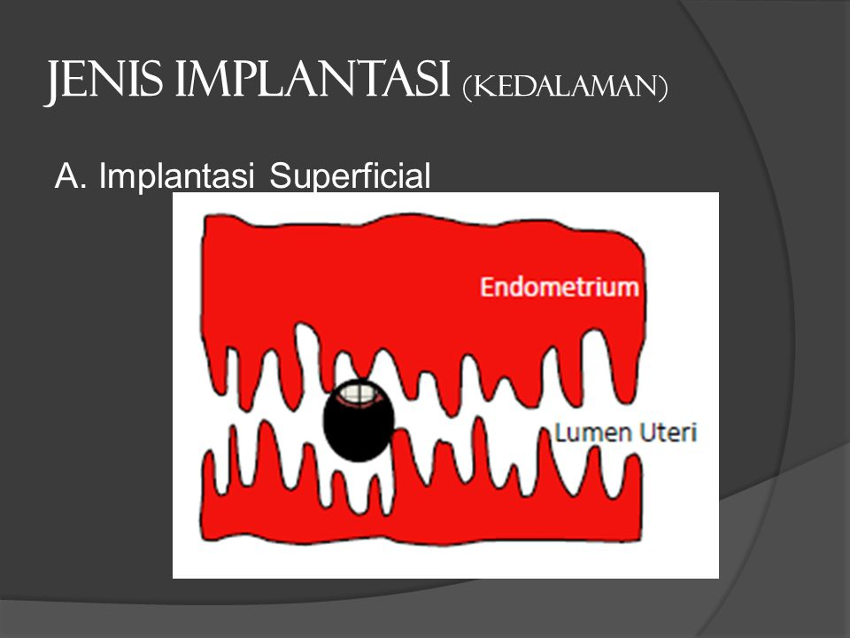 Jenis implantasi (kedalaman) A. Implantasi Superficial