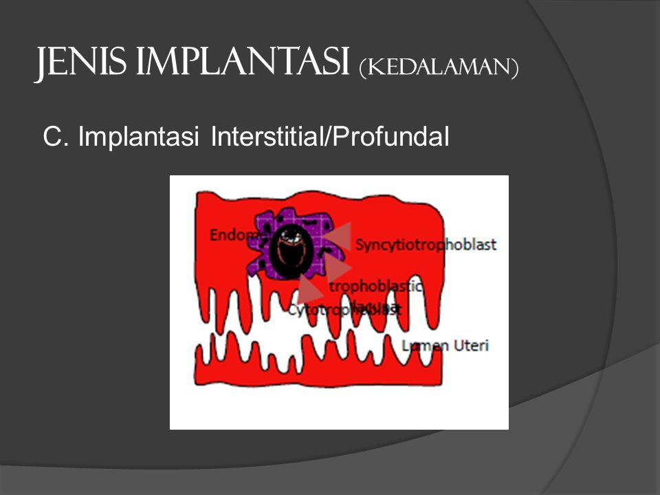 Jenis implantasi (kedalaman) C. Implantasi Interstitial/Profundal