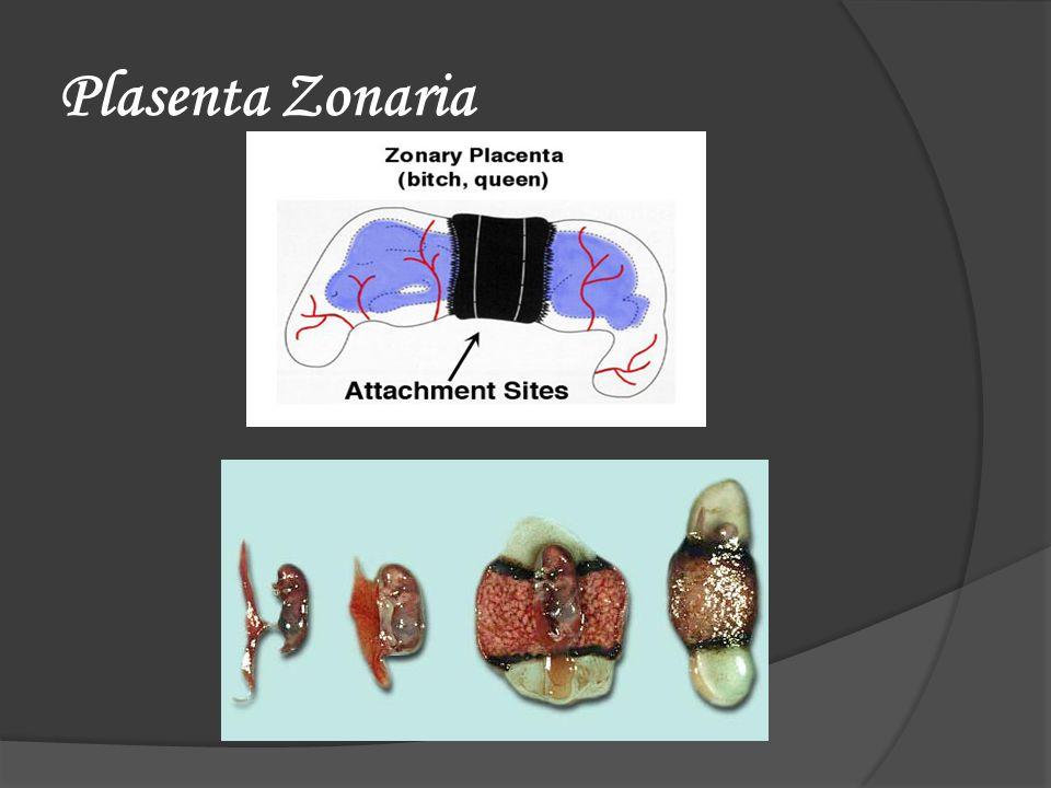 Plasenta Zonaria