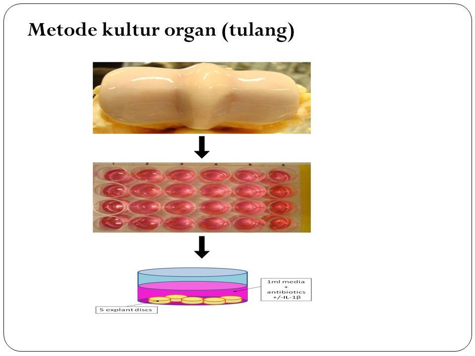 Metode kultur organ (tulang)