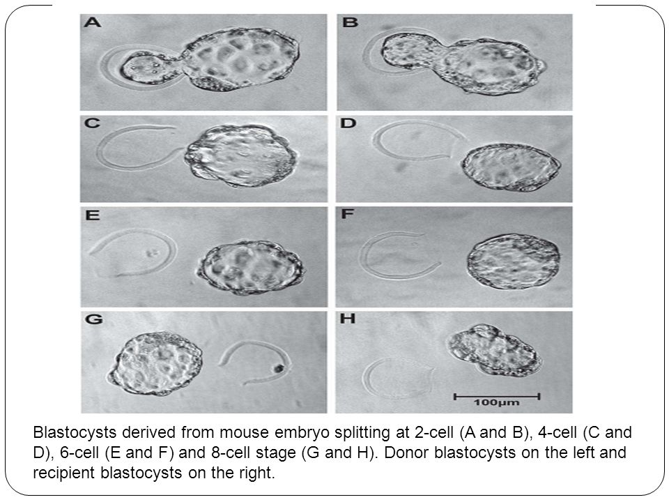 Blastocysts derived from mouse embryo splitting at 2-cell (A and B), 4-cell (C and D), 6-cell (E and F) and 8-cell stage (G and H). Donor blastocysts