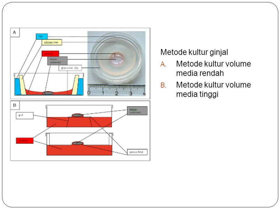 Metode kultur ginjal A. Metode kultur volume media rendah B. Metode kultur volume media tinggi