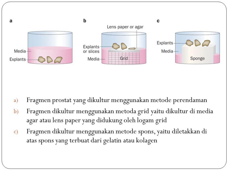 a) Fragmen prostat yang dikultur menggunakan metode perendaman b) Fragmen dikultur menggunakan metoda grid yaitu dikultur di media agar atau lens paper yang didukung oleh logam grid c) Fragmen dikultur menggunakan metode spons, yaitu diletakkan di atas spons yang terbuat dari gelatin atau kolagen