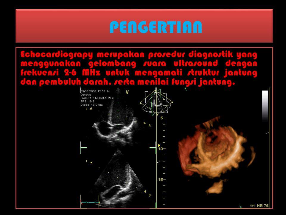 PENGERTIAN Echocardiograpy merupakan prosedur diagnostik yang menggunakan gelombang suara ultrasound dengan frekuensi 2-6 MHz untuk mengamati struktur