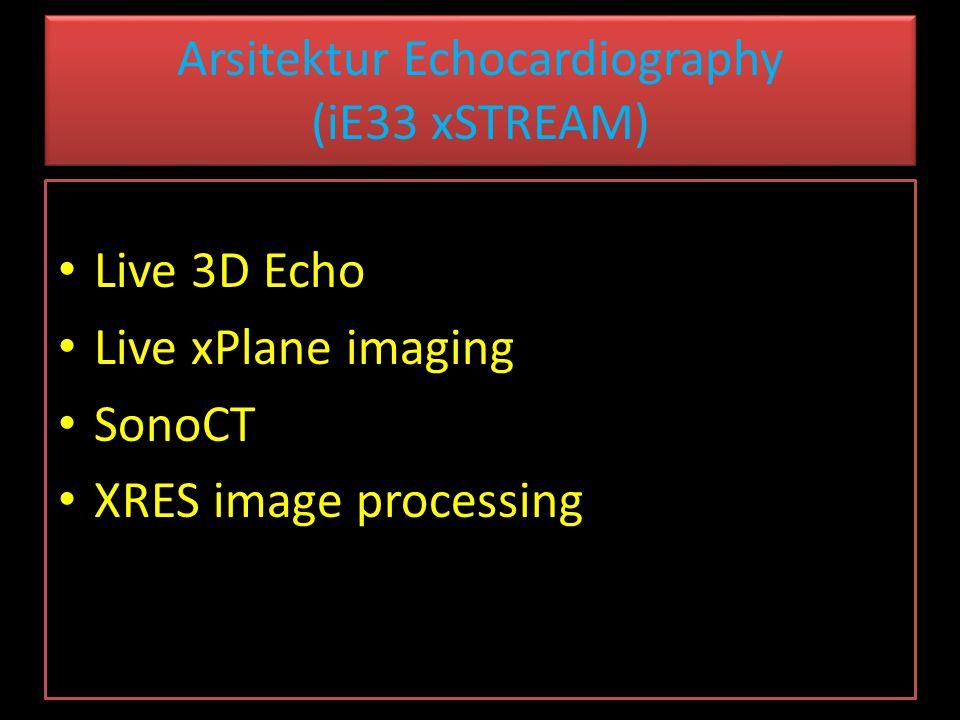 Arsitektur Echocardiography (iE33 xSTREAM) Live 3D Echo Live xPlane imaging SonoCT XRES image processing