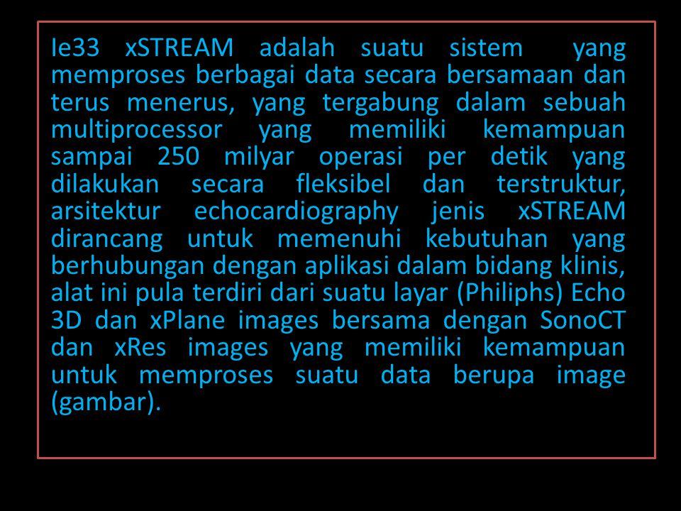 Ie33 xSTREAM adalah suatu sistem yang memproses berbagai data secara bersamaan dan terus menerus, yang tergabung dalam sebuah multiprocessor yang memi