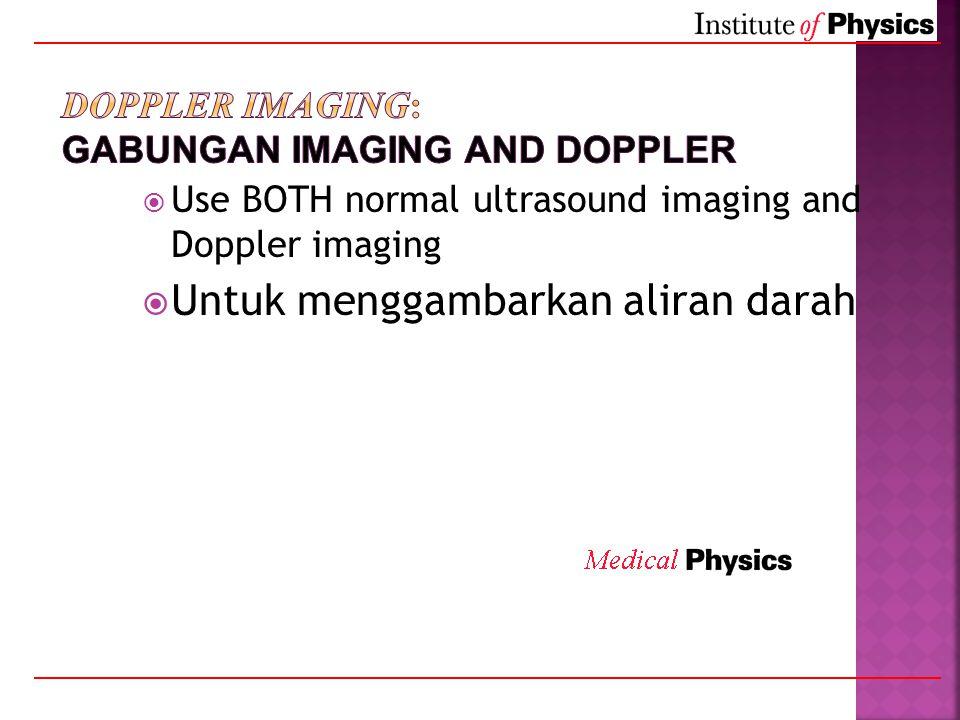  Use BOTH normal ultrasound imaging and Doppler imaging  Untuk menggambarkan aliran darah