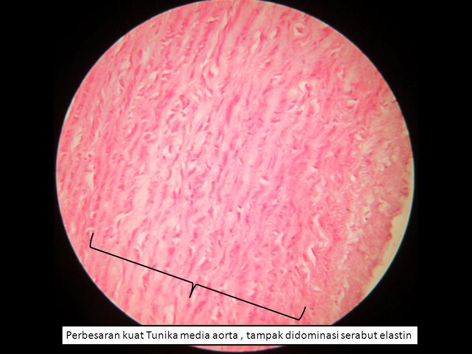 Perbesaran kuat Tunika media aorta, tampak didominasi serabut elastin
