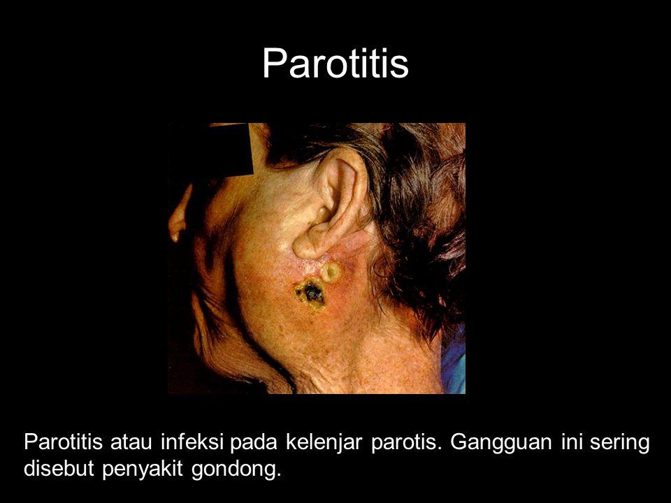Gangguan Pada Mulut Antara lain: Parotitis Xerostomia