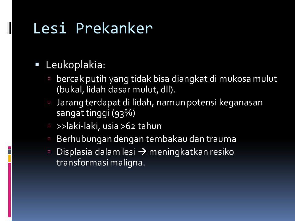Lesi Prekanker  Leukoplakia:  bercak putih yang tidak bisa diangkat di mukosa mulut (bukal, lidah dasar mulut, dll).  Jarang terdapat di lidah, nam