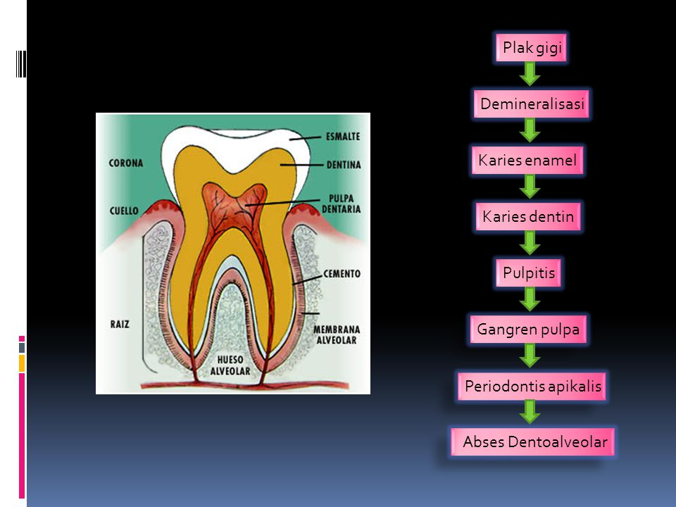 Plak gigi Demineralisasi Karies enamel Karies dentin Pulpitis Gangren pulpa Periodontis apikalis Abses Dentoalveolar