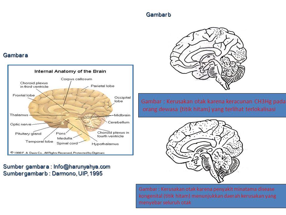 Gambar : Kerusakan otak karena keracunan CH3Hg pada orang dewasa (titik hitam) yang terlihat terlokalisasi Gambar : Kerusakan otak karena penyakit min