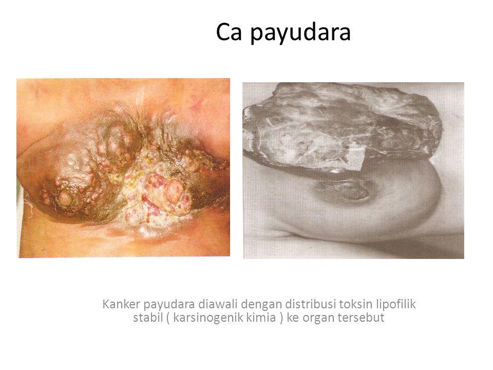 Ca payudara Kanker payudara diawali dengan distribusi toksin lipofilik stabil ( karsinogenik kimia ) ke organ tersebut