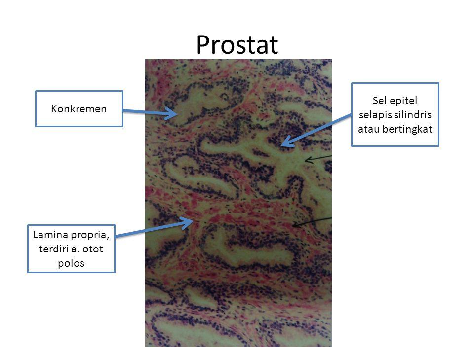 Kelenjar Prostat Bagian epitel biasanya berlapis semu, dan pada beberapa bagian kolumner sederhana, bahkan kuboidal.