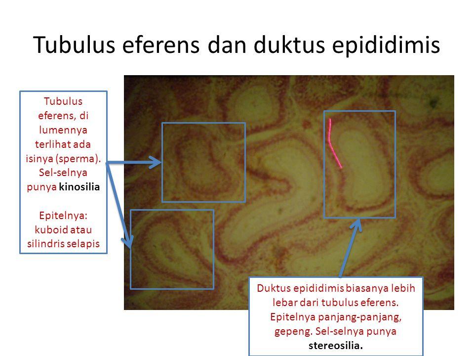 Tubulus eferens dan duktus epididimis Tubulus eferens, di lumennya terlihat ada isinya (sperma).