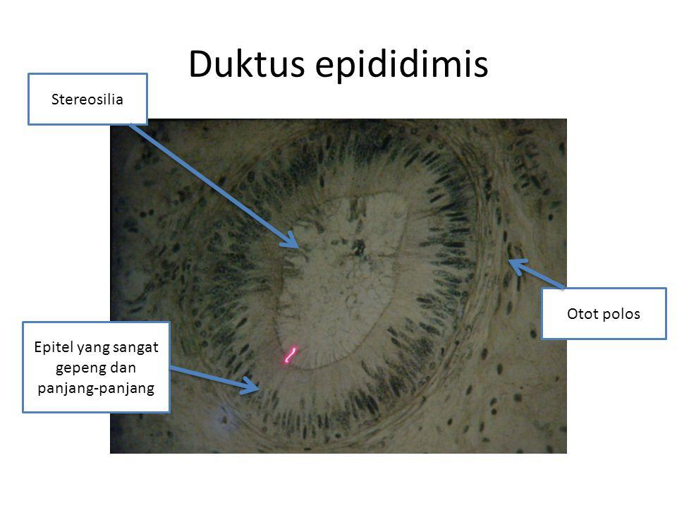 Duktus epididimis Stereosilia Otot polos Epitel yang sangat gepeng dan panjang-panjang