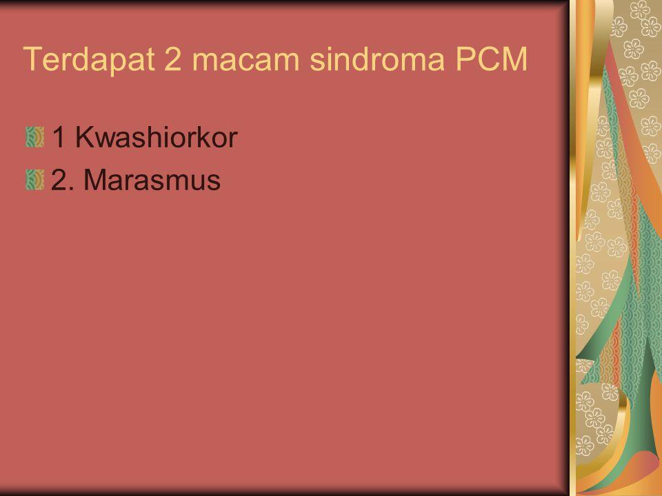 Terdapat 2 macam sindroma PCM 1 Kwashiorkor 2. Marasmus