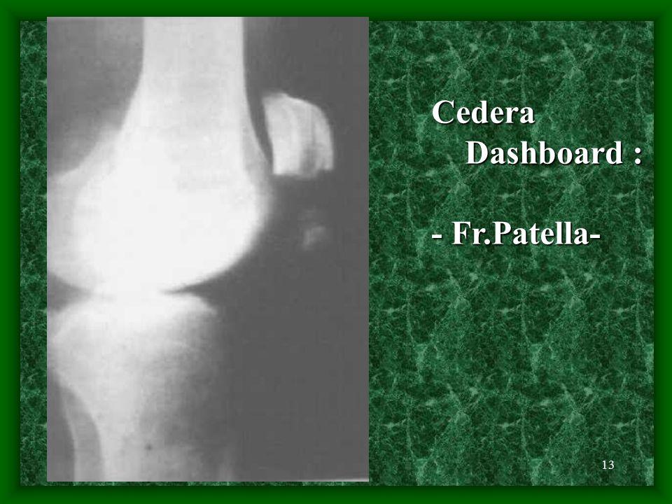 13 Cedera Dashboard : Dashboard : - Fr.Patella-